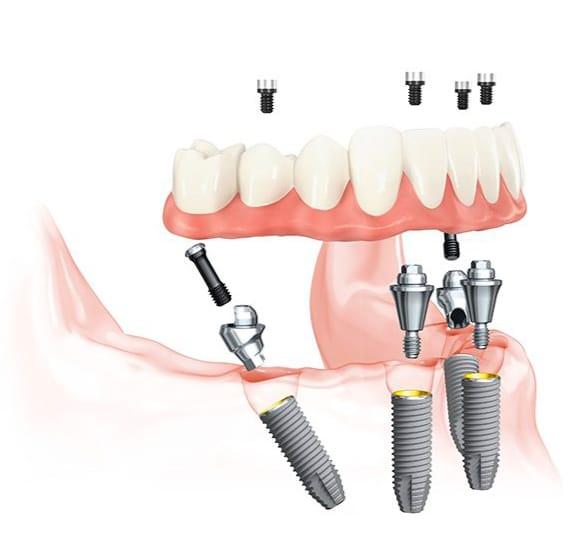 Dental Implants Fort Worth